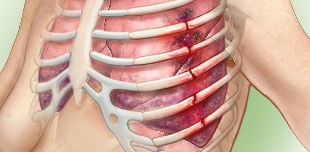 갈비뼈 부러졌을 때, 대처방법 (갈비뼈 골절)