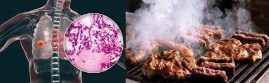 요리연기 폐암 산재인정 조리사