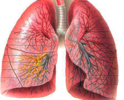 폐부종 유형과 증상 원인까지 정리