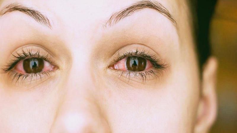 눈 실핏줄 터짐, 평소 잦은 눈 핏줄 터짐이 발생한다면 건강을 의심할 때