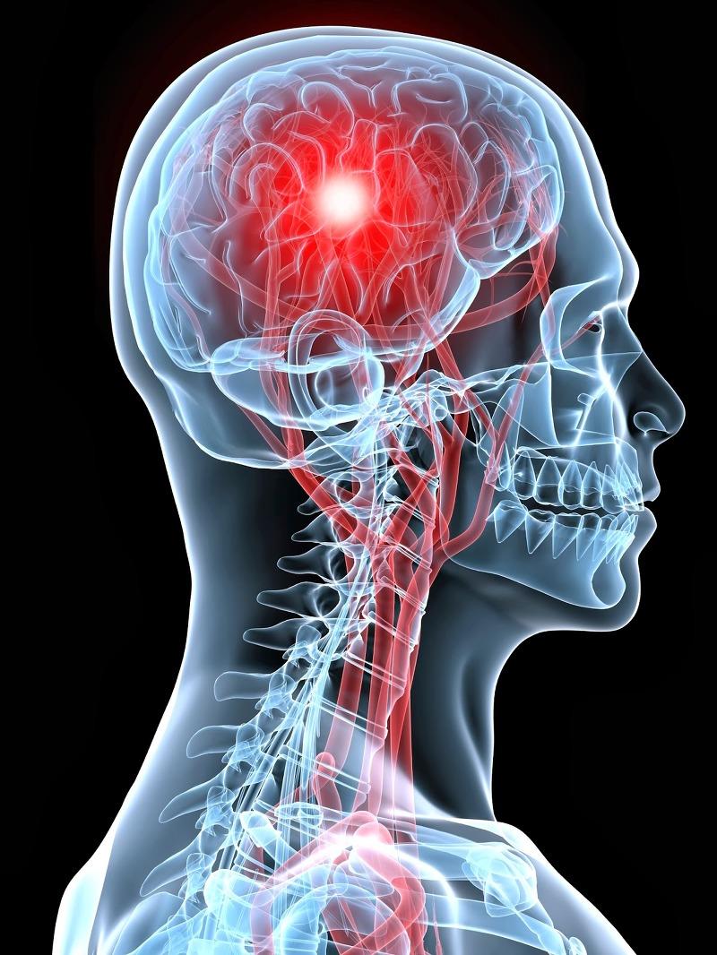 머리가 깨질듯이 아파요 : 뇌졸중 전조증상