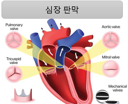 심장판막 질환 증상 원인