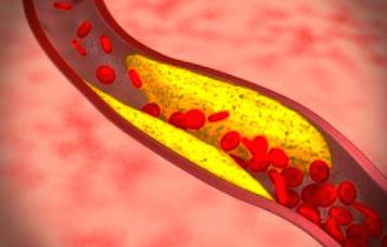 고지혈증 증상 콜레스테롤 예방하는 방법