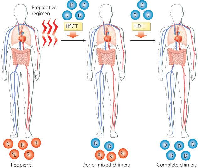 조혈모세포이식 이란? 조혈모세포이식 의료보험, 조혈모세포이식 과정