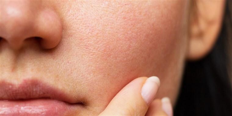 사타구니 피지낭종 원인과 치료방법 알아보기!