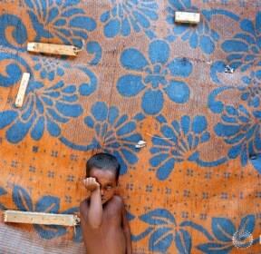 인도, 영양실조로 자라지 못하는 로힝야족 아이들