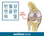 반월상 연골판 파열 원인과 증상