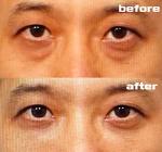 눈밑 지방재배치 수술 후기 #2 - 80일 경과