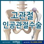고관절통증 일으키는 대퇴골두무혈성괴사는 인공관절수술 필요