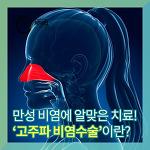 만성 비염에 적절한 수술적 치료 [영등포비염치료]