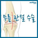 무릎 인공관절수술 후 재활치료는 언제 시작하나요?