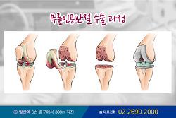 무릎 인공 관절수술, 현실적 고민