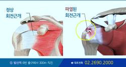 회전근개파열치료법 관절내시경으로 정확하게! 흉터없게!