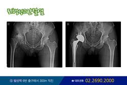 퇴행성 무릎 인공관절 수술 정리!