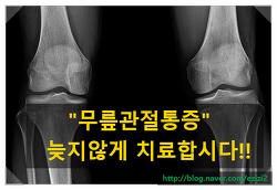 무릎관절통증 / 무릎관절치료 / 관절연골주사    - 대구 사랑모아통증의학과 -