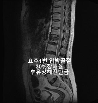 요추1번 압박골절 후유장해진단금 지급사례