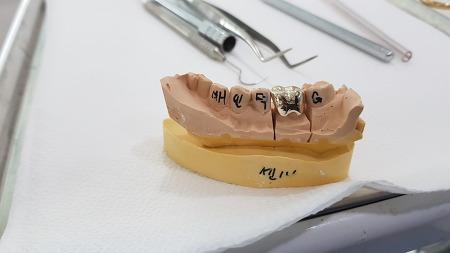 치과 신경치료 후 크라운 씌우기 (금이빨 장착했다 ㅋ) 2차 후기