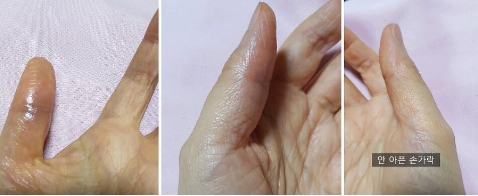 손가락 혈관 터짐? 갑자기 피멍이 든 손가락..이유가 뭘까요?