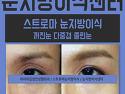 눈지방이식후기) 꺼진눈지방이식