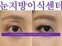 [스트로마 눈지방이식] 꺼지눈/ 눈꺼풀..