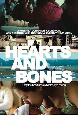 심장과 뼈