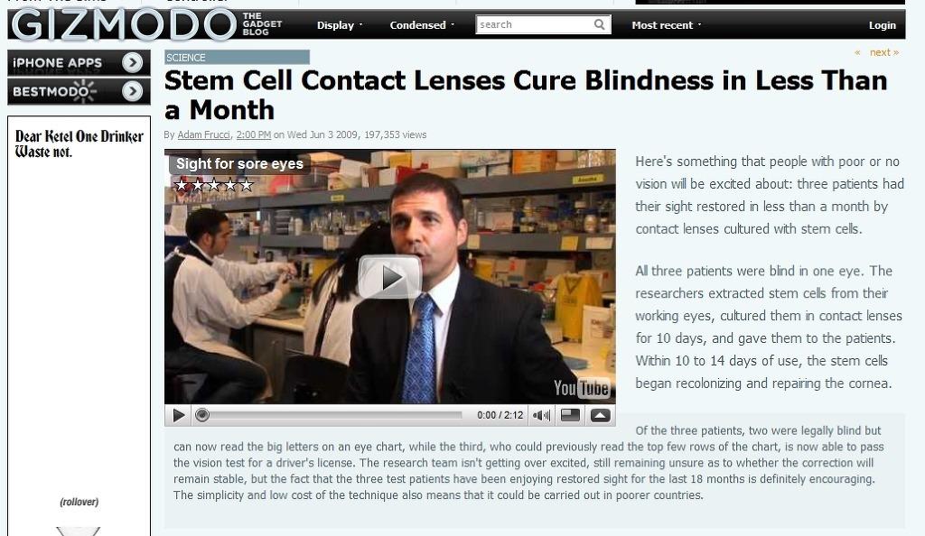 줄기세포 콘택트 렌즈로 약시와 맹인 치료