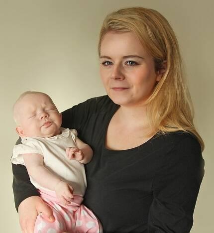 섀넌 코나티와 알비노로 태어난 그녀의 딸 아바 케인.