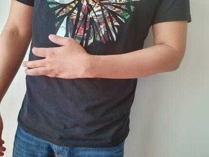 배상현씨의 뒤틀린 손가락 (서울=연합뉴스) 배상현(34)씨가 복합부위통증증후군(CRPS)를 앓는 왼손의 붕대를 풀었을 때의 모습. 손가락이 뒤틀려 있고 손등에 수술 자국이 남아 있다. 2019.8.23 [배상현씨 제공]
