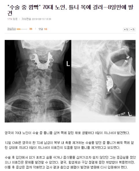 """""""수술 중 깜빡"""" 70대 노인, 틀니 목에 걸려…8일만에 발견"""