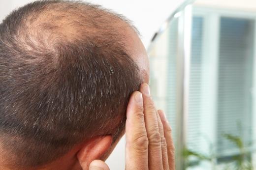 탈모·흰머리 치료 가능할 '줄기세포' 찾았다 - Petrik / Fotolia