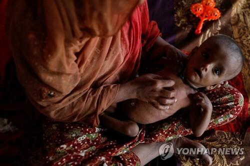 이달 7일(현지시간) 방글라데시 난민캠프에 있는 한 로힝야족 여성이 영양실조와 피부병에 걸린 7개월 된 아들을 안고 있다. [로이터=연합뉴스]