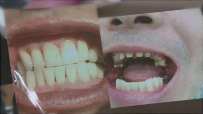 최근 방송된 SBS 궁금한 이야기 Y, '수상한 치과의사 공포의 진료실, 그곳에선 무슨 일이' 편 (사진=SBS 방송 캡쳐)