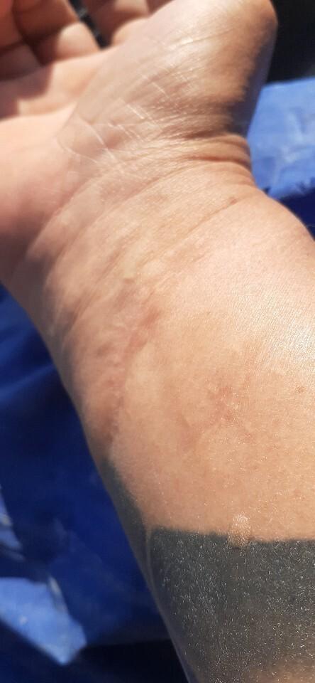 박현용씨가 보낸 손목의 흉터. 삼청교육대에서 구타당하다 유리에 찔려 생긴 이 흉터로 박씨는 여태 엄지손가락에 힘을 못 주고 있다. 박현용씨 제공