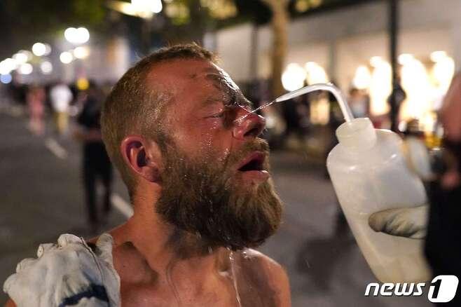 21일(현지시간) 미 오리건주 포틀랜드에서 시위 참가자가 눈에 묻은 최루 가스를 씻어내고 있다. © AFP=뉴스1