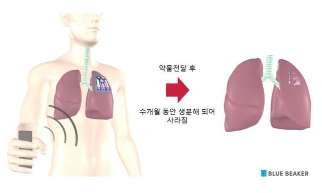 무선 약물전달 의료기기 개념도. (고려대학교 자료 갈무리) 2020.8.29/뉴스1