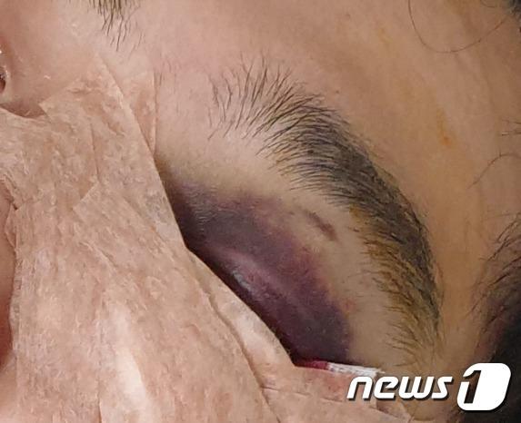 부산 해운대구 한 입주민이 층간소음에 항의하다 폭행을 당했다고 주장했다.(온라인 커뮤니티 캡쳐)© 뉴스1
