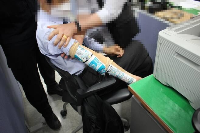 실리콘으로 팔 보호하고 사기 행각 [부산경찰청 제공]