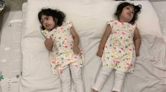 분리 수술에 성공한 샴쌍둥이 자매 사파 비비, 마르와 비비. /BBC