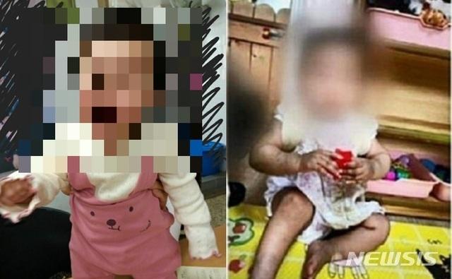 [서울=뉴시스] =서울 양천구에서 생후 16개월 여아가 사망한 사건과 관련해 아이가 입양가정에 보내지기 전(왼쪽)과 후에 극명하게 달라진 모습이 담긴 사진이 공개 됐다. 2020.11.17.