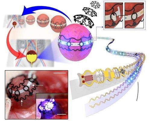 아데노부속 바이러스에 광반응 유전자를 실어 방광에 안착시킨 다음, 방광 둘레를 따라 삽입한 전자실에서 빛을 쏘면 방광 근육이 수축해 소변 배출을 도울 수 있다. 왼쪽 아래 작은 사진은 동물실험 모델에 적용한 모습.