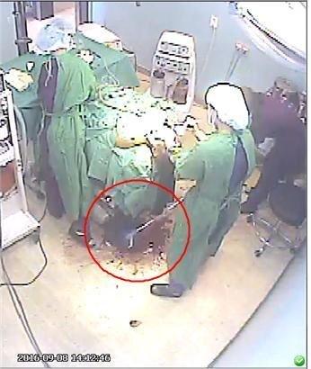 2016년 서울 신사역 인근 한 성형외과에서 수술을 받다 중태에 빠져 사망한 고 권대희씨 수술 당시 CCTV 영상. 바닥에 고인 피를 간호조무사가 밀대걸레로 닦고 있다. 권대희 사건은 수술실CCTV를 확보해 의료진 공장식 유령수술 등 범죄행위 책임을 물은 대표적 사건으로 꼽힌다. 닥터벤데타 제공.