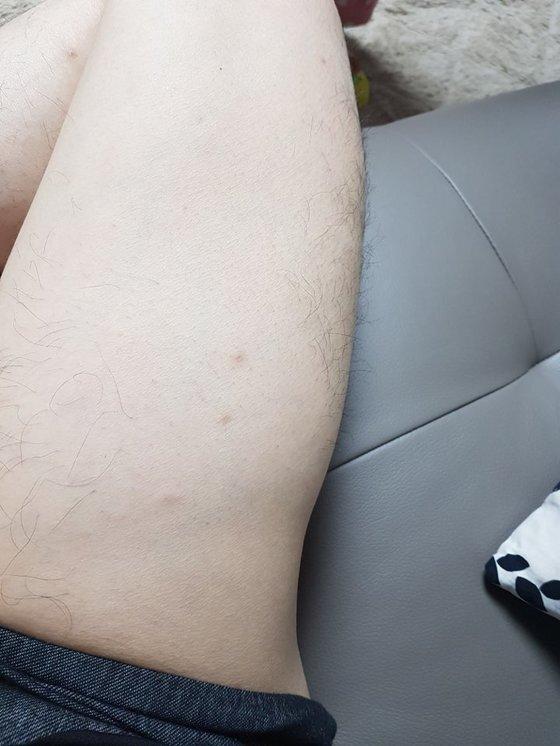 신도가 이상증세가 있다고 한 자신의 허벅지 부분. 사진상으로도 일부 허벅지 부위가 들어가 보인다. [사진 신천지 대구교회 측]