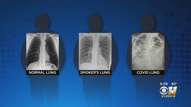 건강한 사람과 흡연자 그리고 코로나19 환자의 폐 비교(사진=CBS DFW)