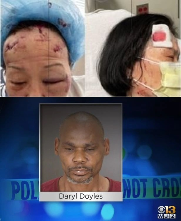 한인 자매(위)를 공격한 남성(아래). (미 볼티모어 지역방송 WJZ 갈무리) © 뉴스1