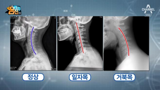 출처: 채널A<나는몸신이다>