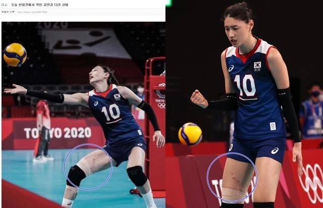 좌측은 온라인 커뮤니티 캡처, 우측은 연합뉴스