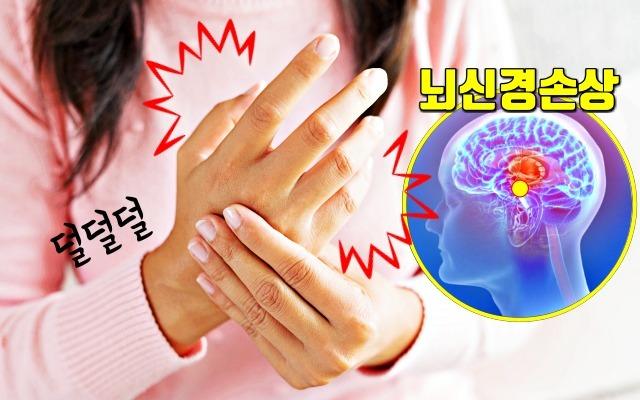 몸의 이상신호 '떨림'이 경고하는 6가지 질환 (손떨림, 눈떨림, 얼굴떨림 증상)
