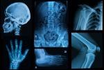 퇴행성 관절염(degenerative arthritis)을 어떻게 치료하십니까?