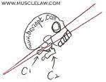 카이로프랙틱(chiropractic) 제3부