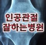 인공관절수술잘하는병원 서울시립병원 서남병원 리얼후기